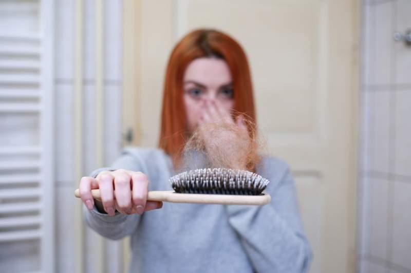 hair-balding-women