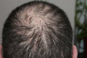 man-hair-loss-head