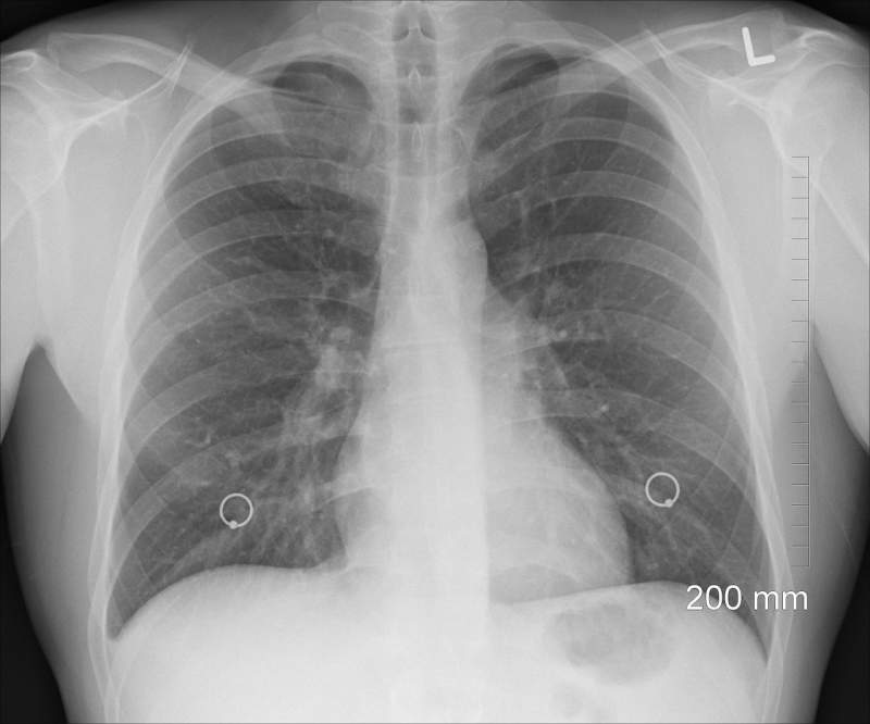 diagnosis-xray-chest-lungs-ribs