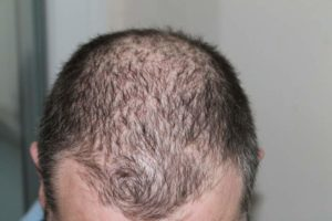 hair-loss-head