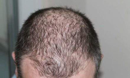 Simply Reduce Your Hair Loss