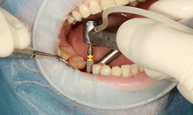 Are You A Qualified Candidate For Dental Implants?
