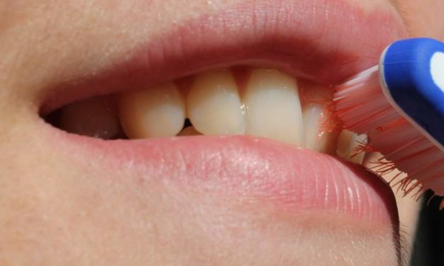 What is Teeth Whitening-Cosmetic Dentistry
