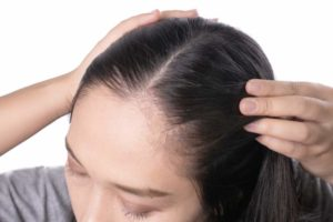 Young asian women worry about problem hair loss, head bald, dandruff