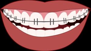 orthodontics-smile-teeth-dentist